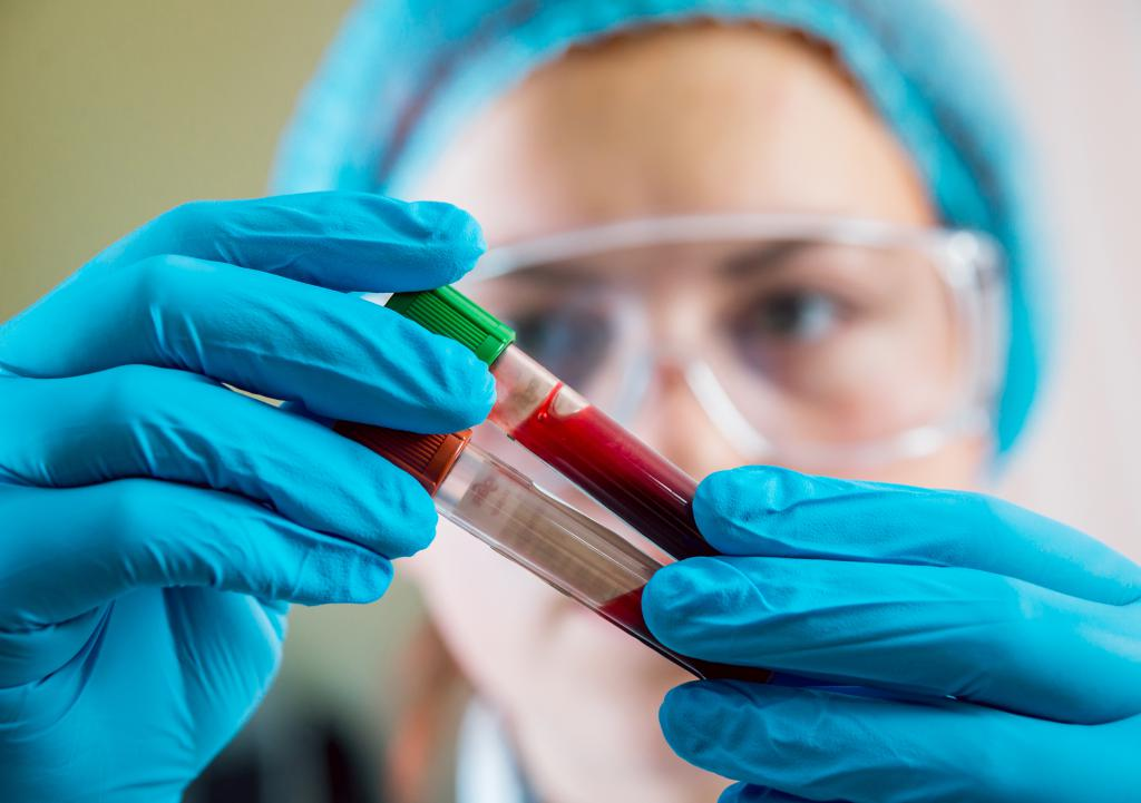 врач с анализами крови