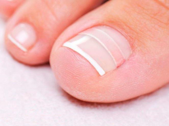 скобы фрезера для ногтей