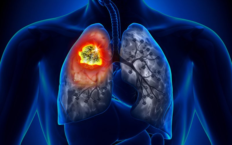 Разновидности туберкулеза бронхов