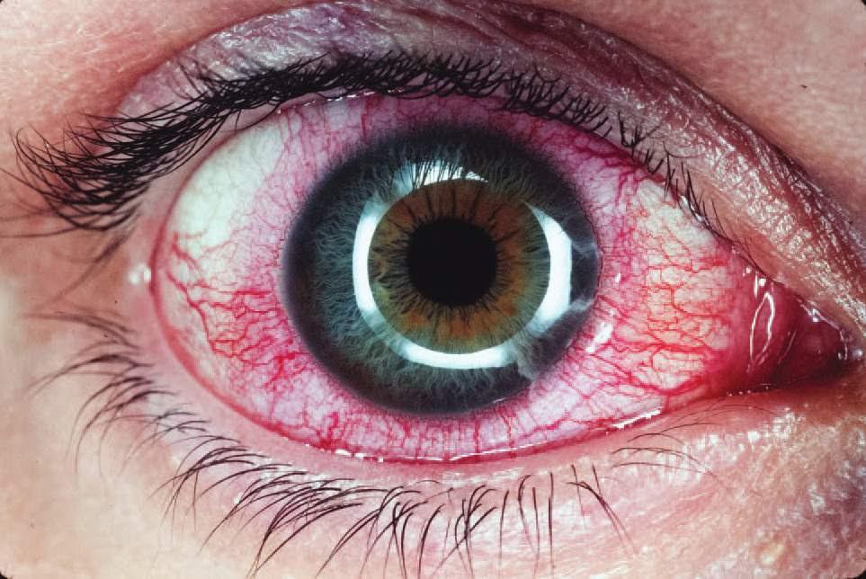 Картинки глаз с заболеванием