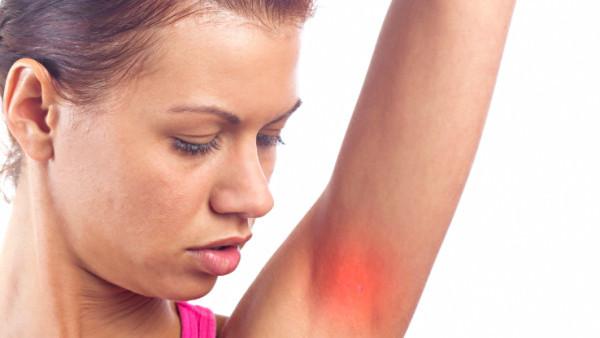 Armpit irritation