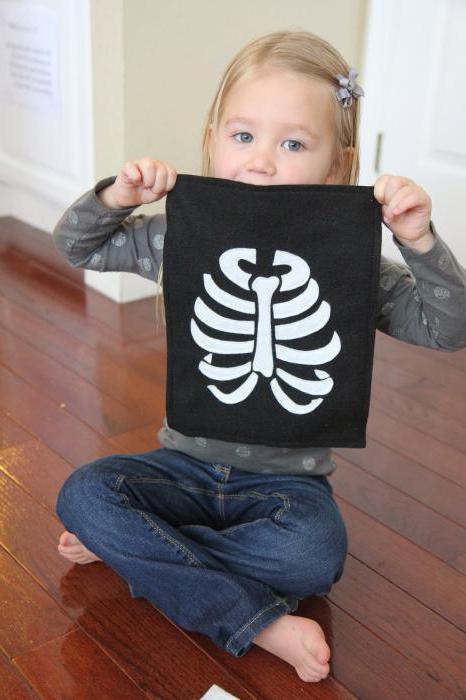 рентген легких ребенка фото
