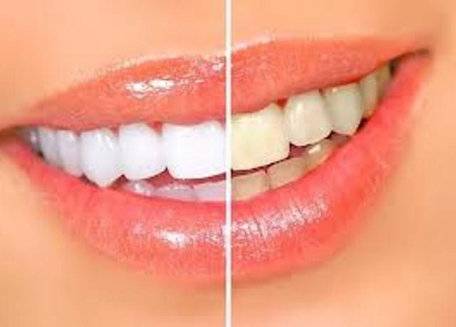 Паста для отбеливания и тонкой полировки эмали зубов