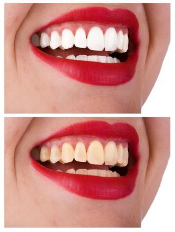 отбеливание зубов опасно для эмали