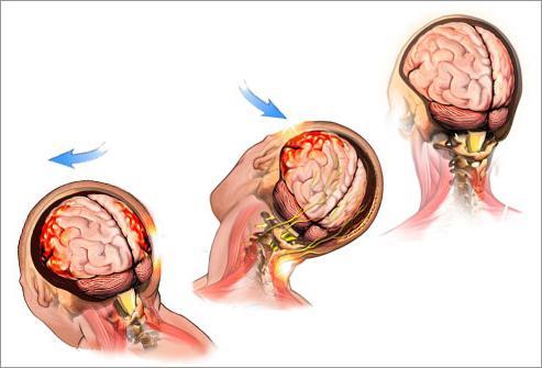 Как лечить седалищный нерв в поясничном отделе