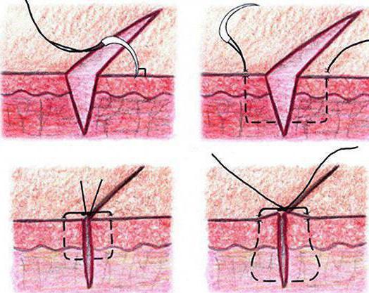 Варикозы внутренних вен