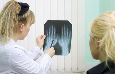 Полиостеоартроз: что это такое и как лечить, причины и симптомы, код по МКБ 10
