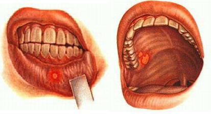заболевания полости рта фото