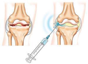 операция гонартроз коленного сустава