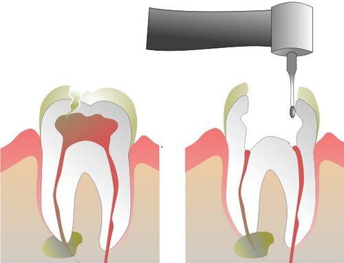 чистка каналов зуба