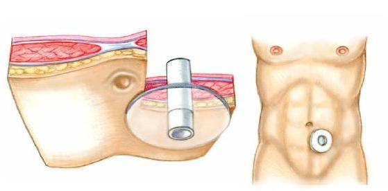 Стома кишечника