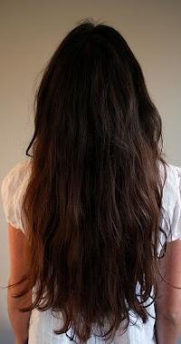 Какой анализ на гормоны при выпадении волос