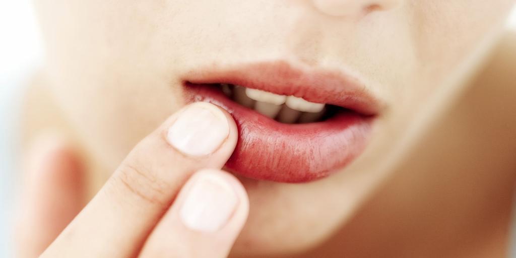 Воспаленные герпесом губы