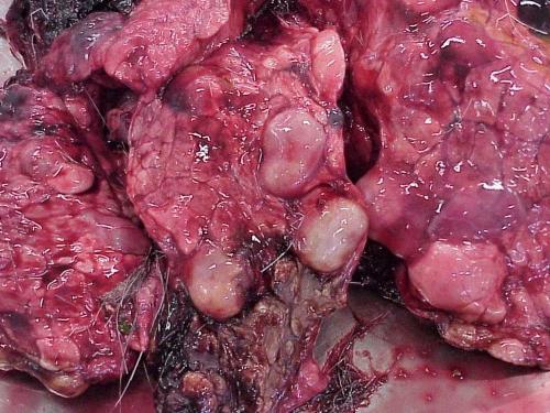 паразит в печени человека видео