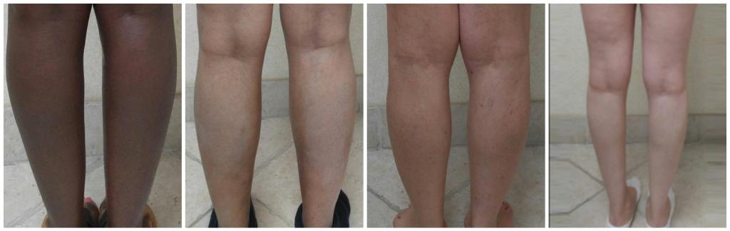 х образные ноги у ребенка 2 года