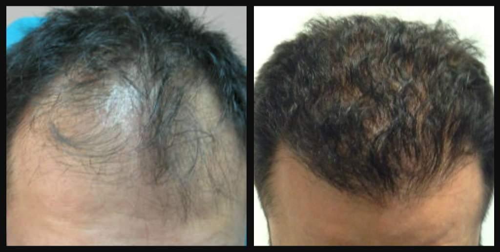 Пересадка волос в Турции: методика, цена, отзывы