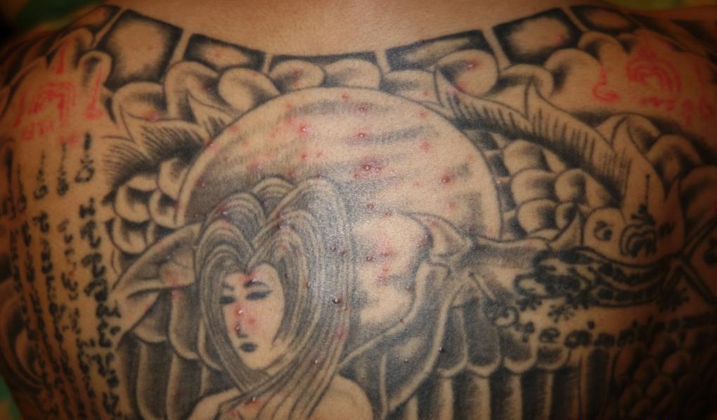 Прыщи на татуировке: что делать?
