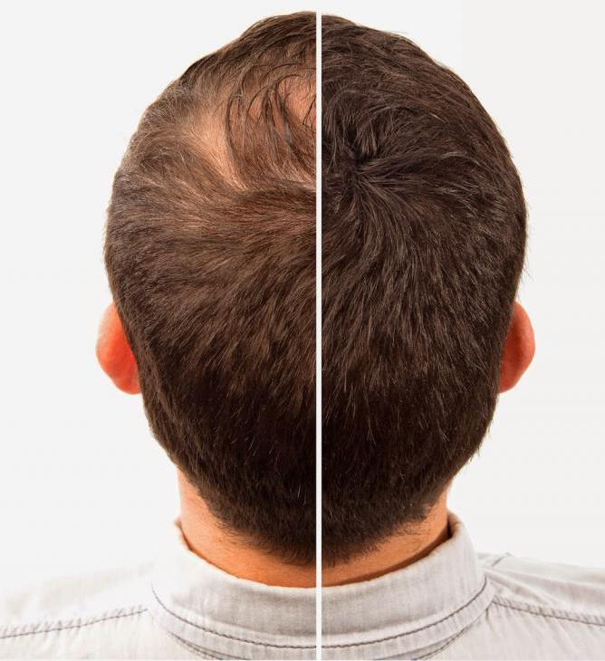 Средства от выпадения волос для мужчин: виды, рейтинг, составы, условия применения, фото до и после