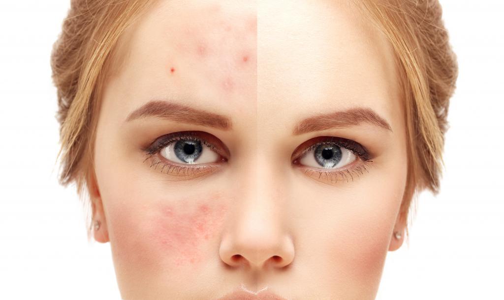 Korean cosmetics for problem skin