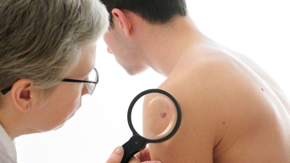герпес на теле лечение у взрослых