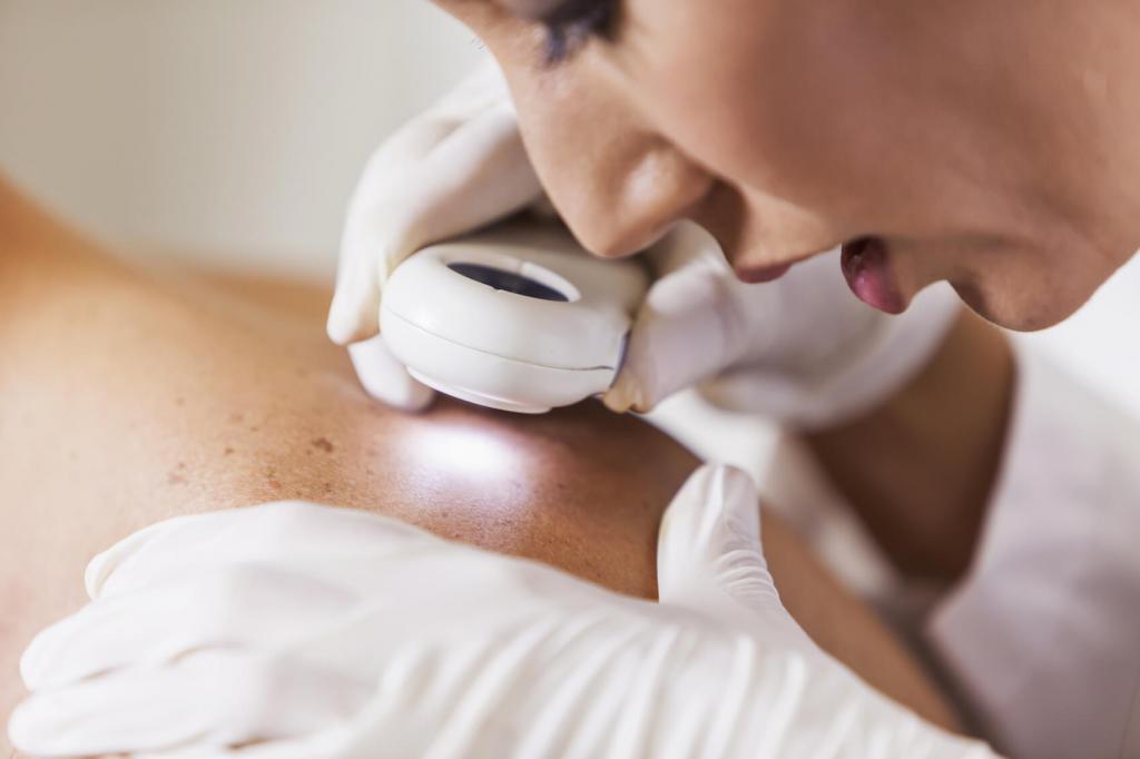 лечение герпеса на теле
