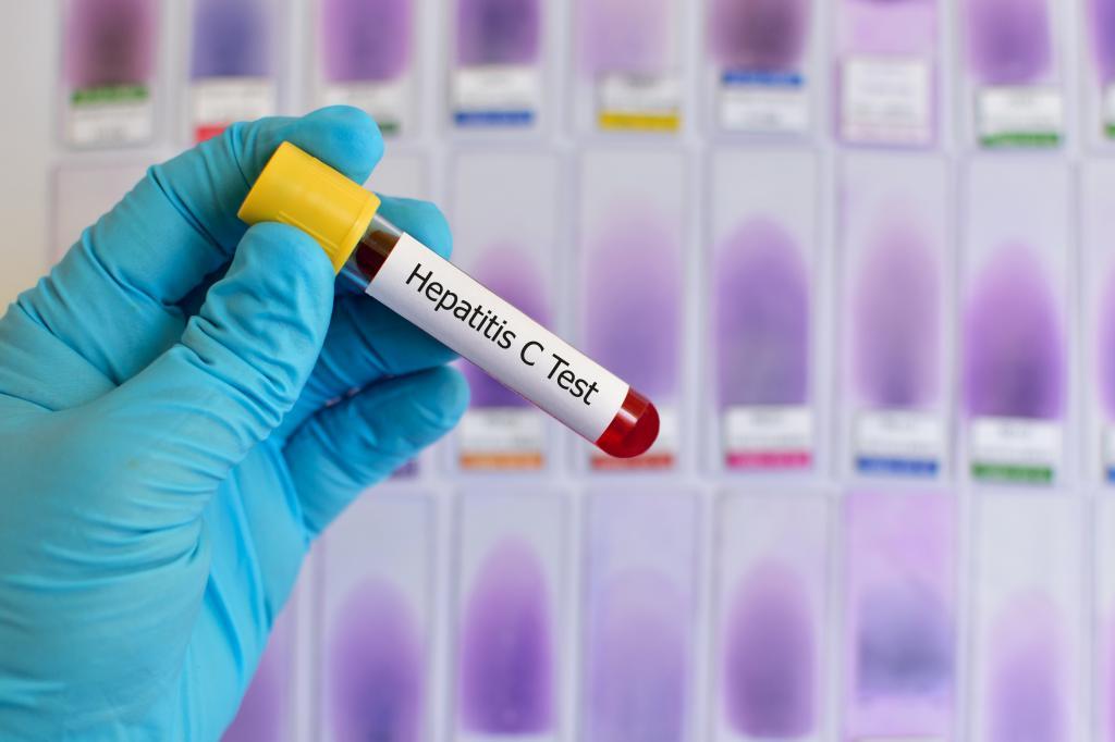 первый симптомы гепатита с