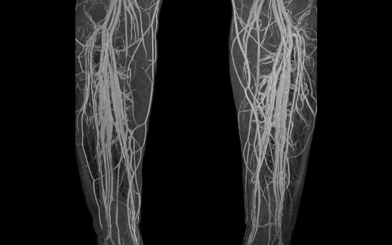Тромбоз подключичной вены мкб 10