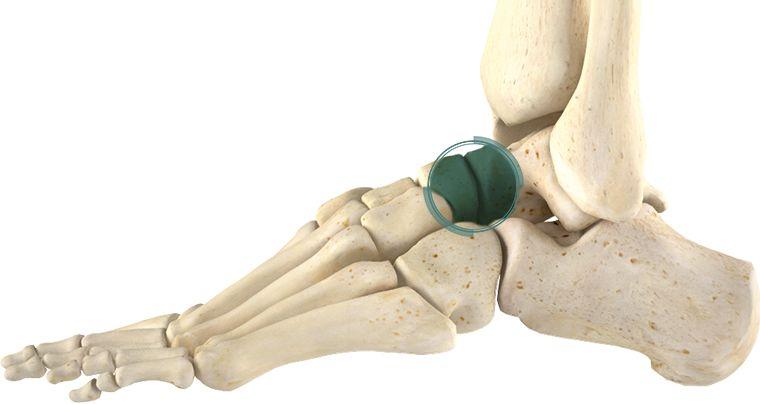 Таранно-ладьевидный сустав