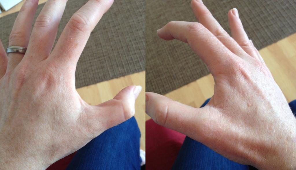 Почему Похудели Пальцы Рук. Как эффективно похудеть в пальцах рук и сделать их красивыми?