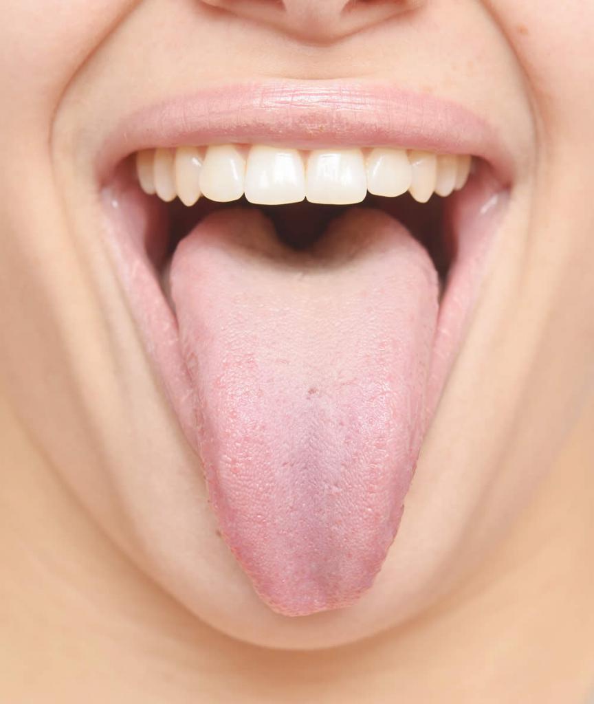Абсцесс полости рта – причины, симптомы, лечение