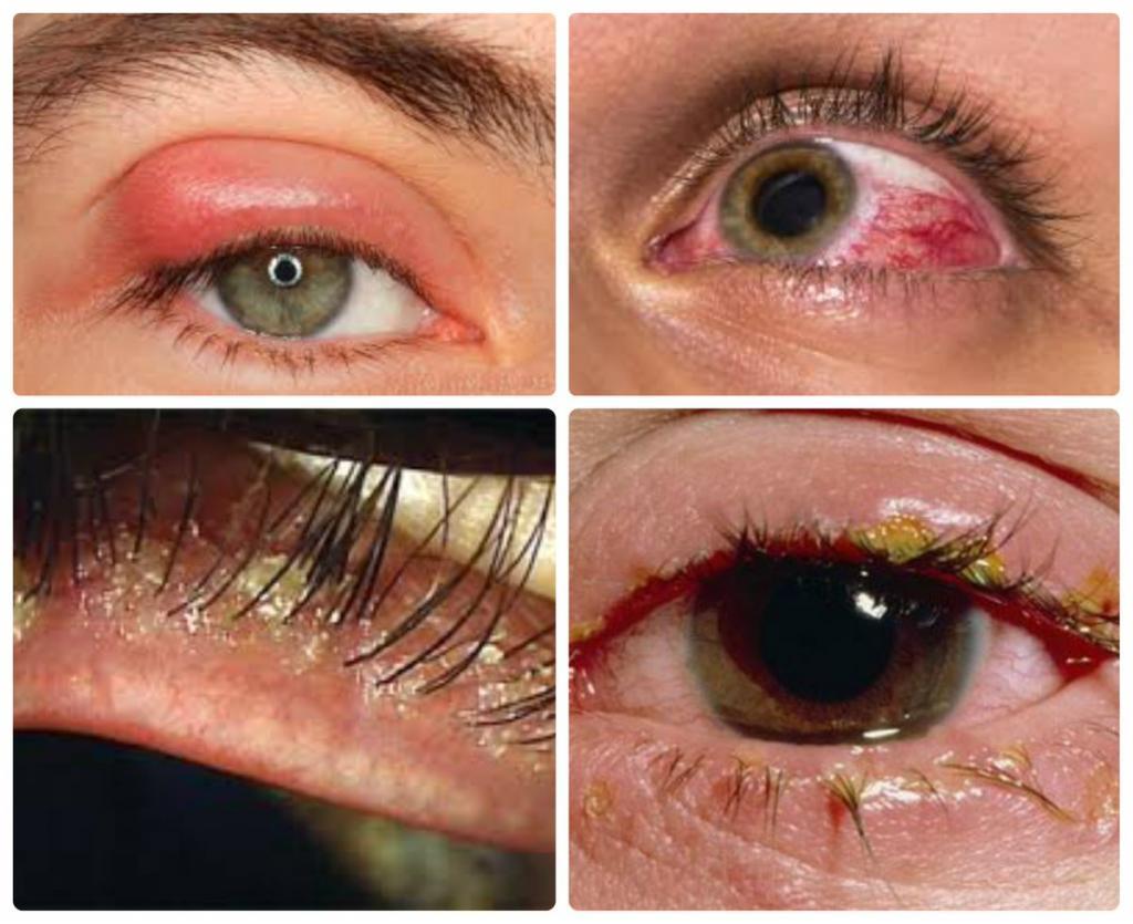 Глазной демодекоз в картинках