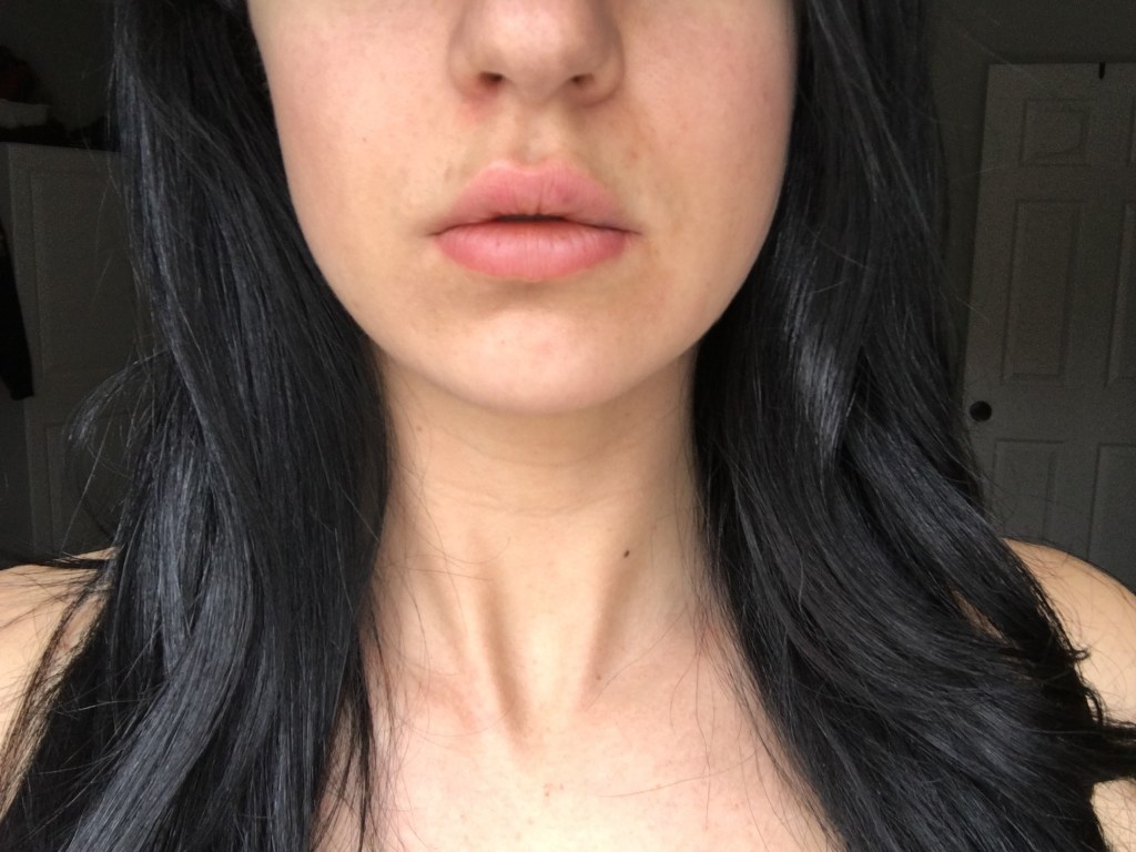 Does it hurt to enlarge your lips with hyaluronic acid?