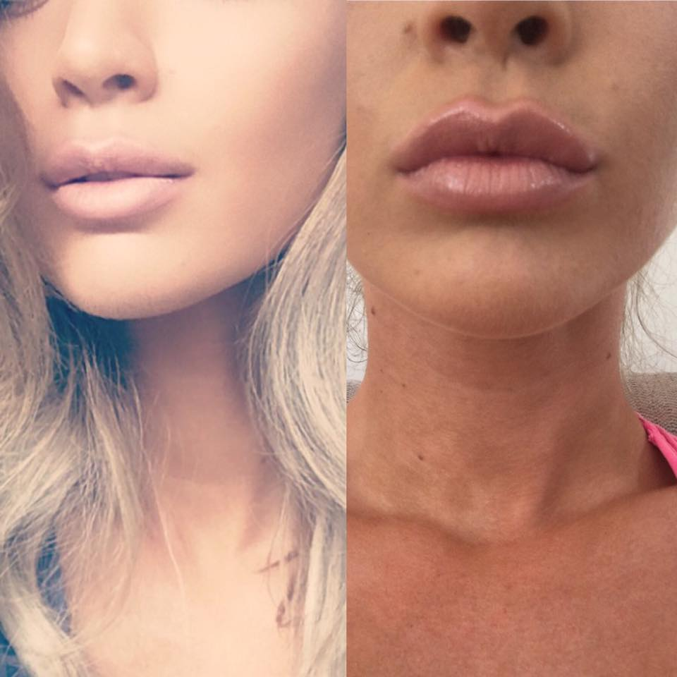 красиво увеличенные губы фото сайгак