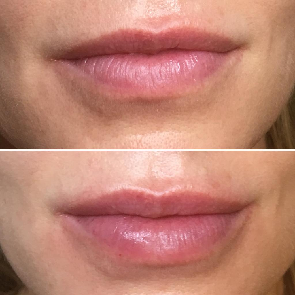 Who enlarged lips reviews