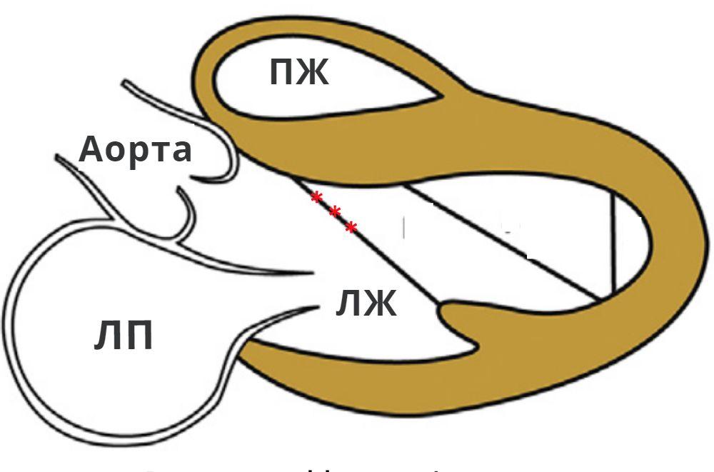 Схема возможного расположения дополнительных хорд