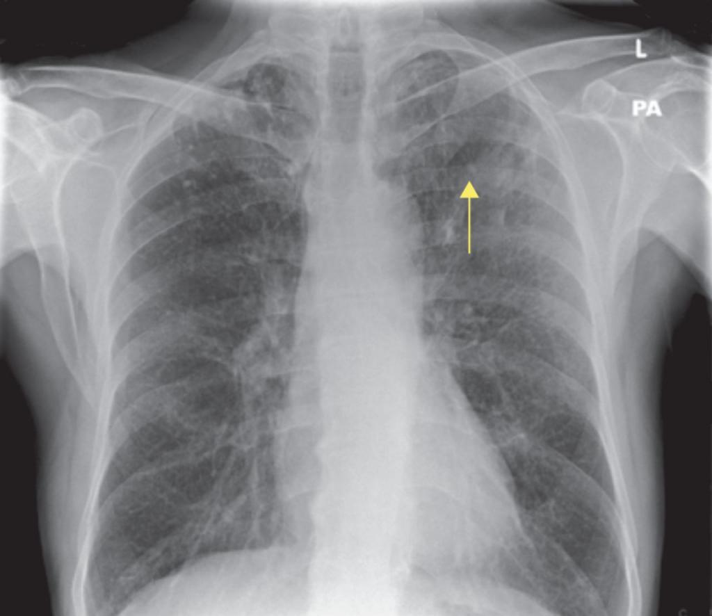 Как выглядит пневмония на снимке: симптомы, причины, лечение, проведение флюорографической диагностики, разъяснения врача с фото