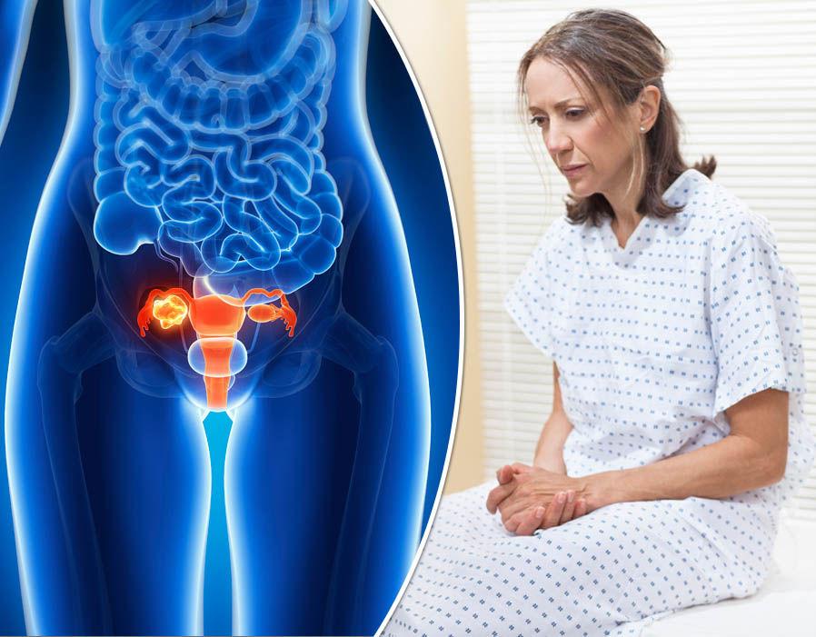 Рак женских органов симптомы 28