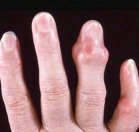 ревматоидный артрит фото
