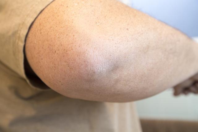 Шелушение кожи на локтях у мужчины-причины