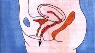 гистерэктомия матки
