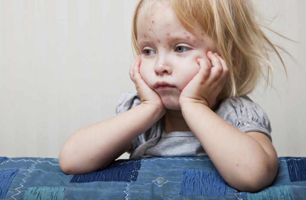 Краснуха неприятное, но довольно легкое заболевание