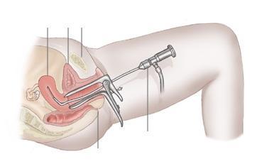 после гистероскопии беременность