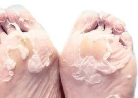специальные носки для пяток