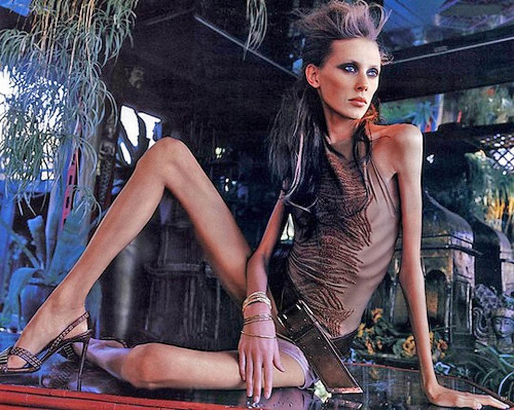 Фото костлявых девочек, Бикини-мостики худеньких девушек (23 фото) 5 фотография