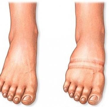 Что делать если сильно отекли ноги