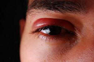 аллергия зуд на веках