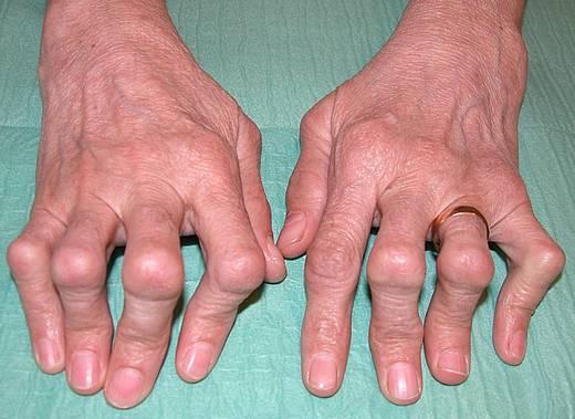 болят кончики пальцев на руках