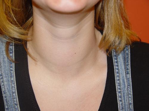 боль в горле справа при глотании