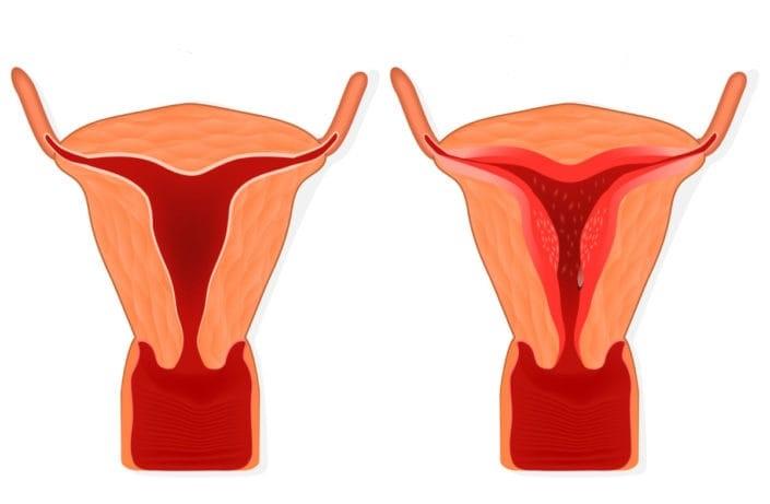 Эндометрий поздней стадии фазы пролиферации 17