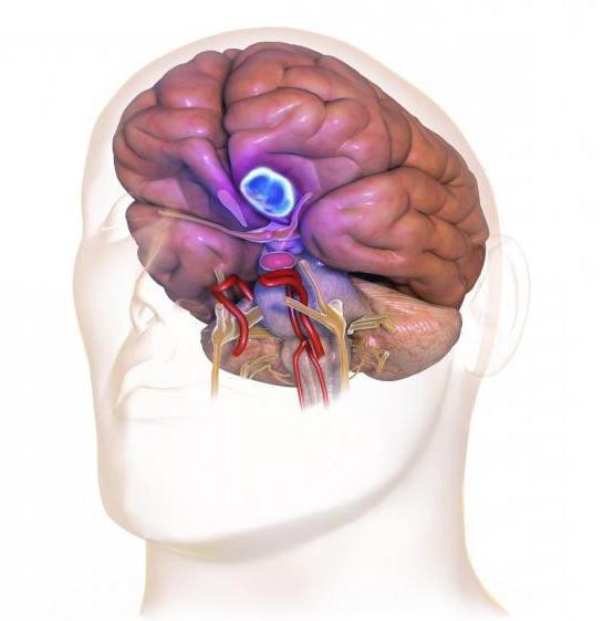 конвекситальная менингиома профилактика